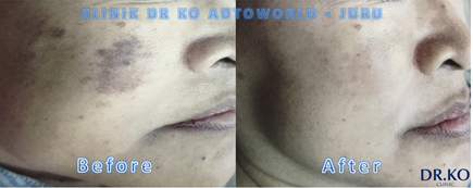 hyperpigmentation treatment Malaysia 1